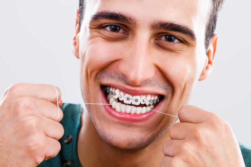 Como usar fio dental com aparelho ortodôntico?